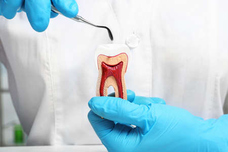 Dentist holding educational model of tooth and professional tool, closeup
