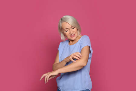 Mature woman scratching arm on color background. Annoying itch