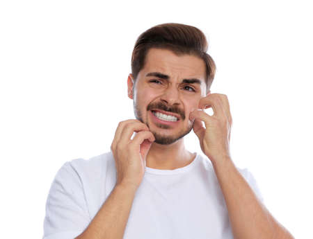 Young man scratching face on white background. Annoying itch
