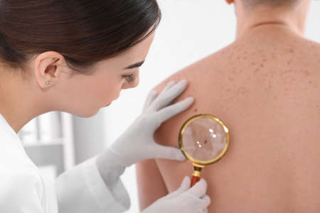 Paziente d'esame del dermatologo con la lente d'ingrandimento in clinica, vista del primo piano