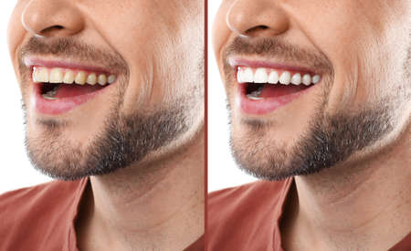 Smiling man before and after teeth whitening procedure, closeup Banco de Imagens