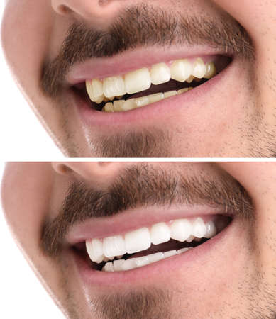 Smiling man before and after teeth whitening procedure, closeup Stock fotó
