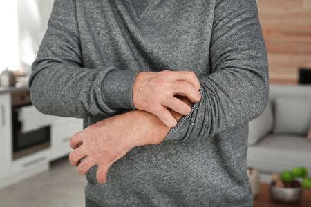 Mature man scratching arm at home, closeup. Annoying itch