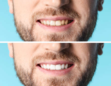 Smiling man before and after teeth whitening procedure on color background, closeup Foto de archivo