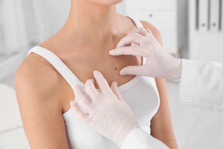 Dermatologo che esamina la voglia del paziente in clinica, primo piano