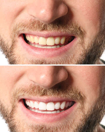 Smiling man before and after teeth whitening procedure, closeup 스톡 콘텐츠