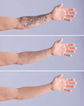 Joven antes y después del procedimiento de eliminación de tatuajes con láser sobre fondo de color, primer plano