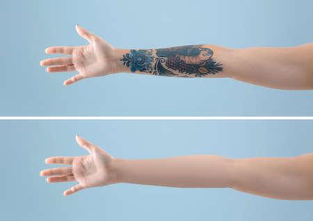 Mujer joven antes y después del procedimiento de eliminación de tatuajes con láser sobre fondo de color, primer plano