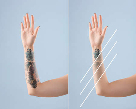 Young woman before and after laser tattoo removal procedure on color background, closeup Imagens