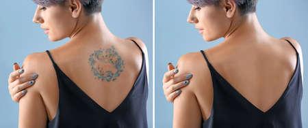 Mujer joven antes y después del procedimiento de eliminación de tatuajes con láser, primer plano Foto de archivo