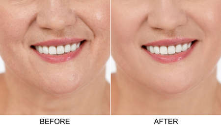 Mature woman before and after biorevitalization procedure, closeup. Cosmetic surgery