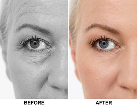 Mature woman before and after blepharoplasty procedure, closeup. Cosmetic surgery
