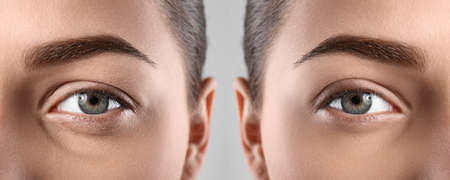 Woman before and after blepharoplasty procedure, closeup. Cosmetic surgery Stock fotó