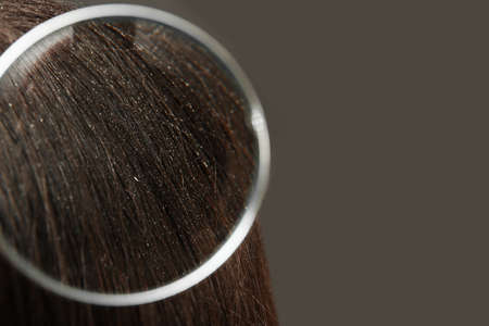 Closeup of woman with dandruff in her hair on grey background, view through magnifying glass. Space for text Stock Photo
