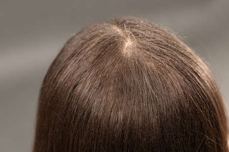 Woman with dandruff in her dark hair on grey background, closeup 版權商用圖片