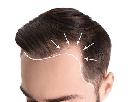 Hombre joven con problema de pérdida de cabello sobre fondo blanco, primer plano