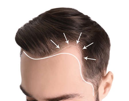 Young man with hair loss problem on white background, closeup