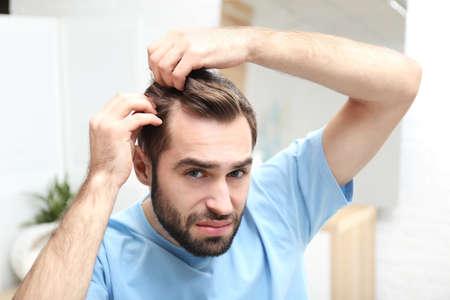 Jonge man met haaruitval probleem binnenshuis Stockfoto