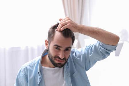 Junger Mann mit Haarausfallproblem drinnen Standard-Bild