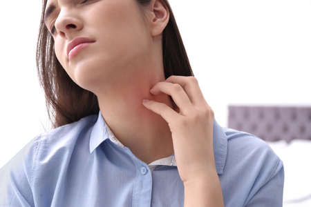 Young woman scratching neck indoors, closeup. Allergies symptoms
