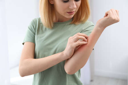 Vrouw met allergiesymptomen die binnen onderarm krabben, close-up