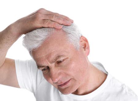 Älterer Mann mit Haarausfallproblem isoliert auf weiß