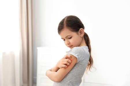 Bambina che graffia il braccio al chiuso. Sintomi di allergia Archivio Fotografico