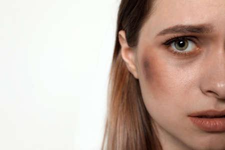 Mujer joven maltratada sobre fondo claro, primer plano. Detener la violencia Foto de archivo