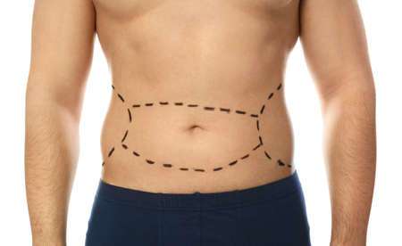 Young man with marks on belly for cosmetic surgery operation against white background, closeup