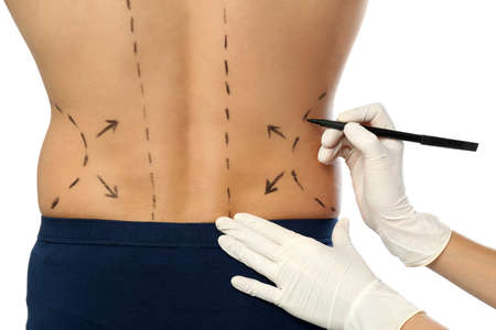 Doctor drawing marks on man's body for cosmetic surgery operation against white background, closeup