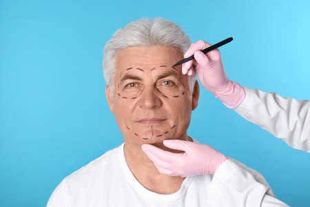 Doctor drawing marks on man's face for cosmetic surgery operation against blue background