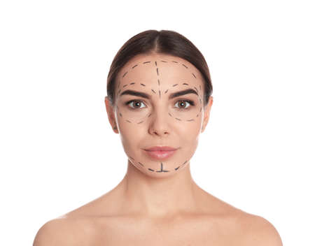 Young woman with marks on face for cosmetic surgery operation against white background
