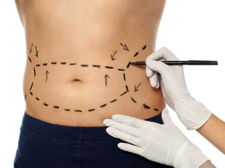 Doctor drawing marks on mans body for cosmetic surgery operation against white background, closeup