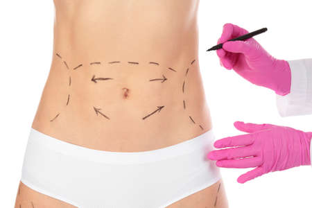 Doctor drawing marks on woman's body isolated on white. Cosmetic surgery