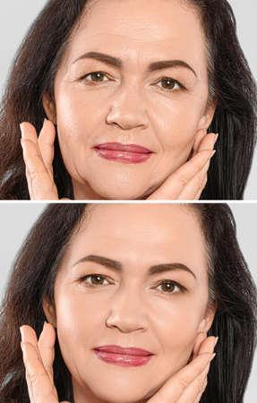 Beautiful mature woman before and after biorevitalization procedure, closeup