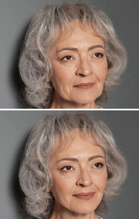 Beautiful mature woman before and after biorevitalization procedure on grey background