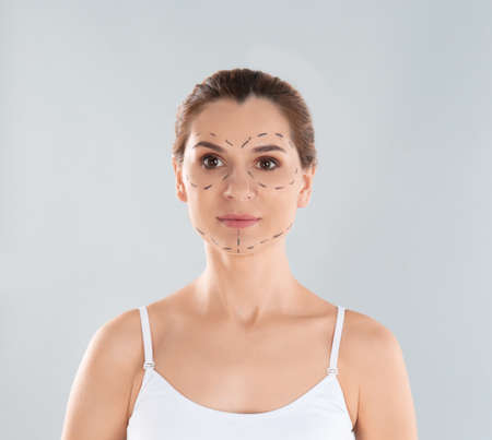 Portrait of woman with marks on face against grey background. Cosmetic surgery