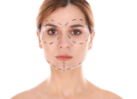 Portrait of woman with marks on face for cosmetic surgery operation against white background