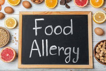 Chalkboard with words FOOD ALLERGY and different products on white wooden table, flat lay