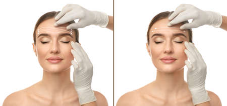 Doctor examining womans face before and after plastic surgery on white background