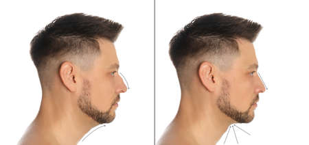 Man before and after plastic surgery on white background