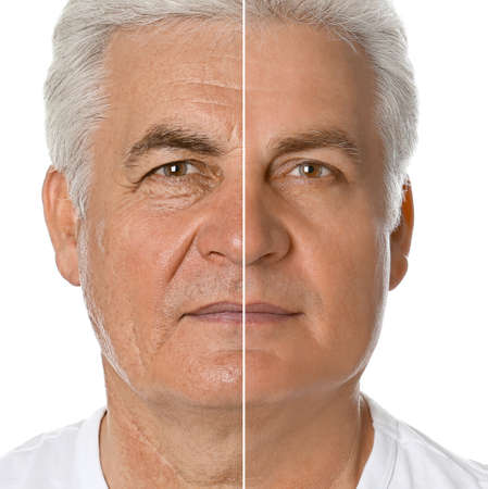 Mature man before and after plastic surgery on white background