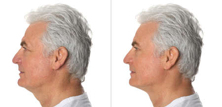 Mature man before and after plastic surgery on white background Banque d'images