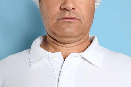 Hombre maduro con papada sobre fondo azul, primer plano