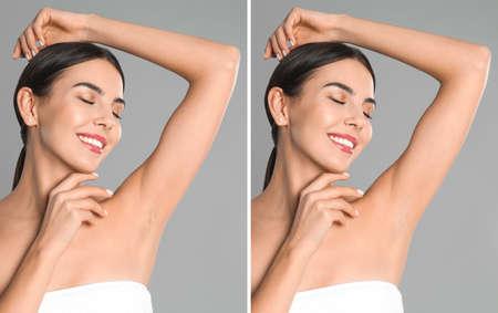 Collage di donna che mostra l'ascella prima e dopo l'epilazione su sfondo grigio chiaro