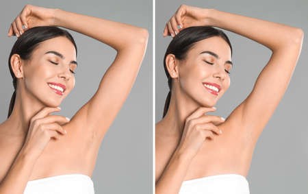 Collage of woman showing armpit before and after epilation on light grey background