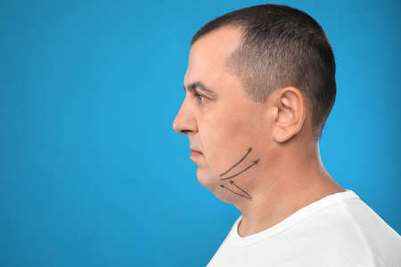 Mature man with marks on face against blue background, space for text. Double chin removal