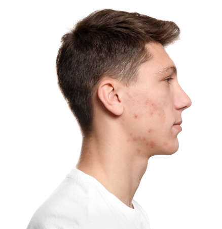 Teen guy with acne problem on white background