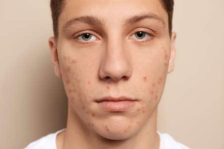 Chico adolescente con problema de acné sobre fondo beige, primer plano