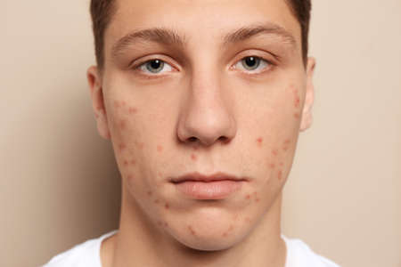 Teen guy with acne problem on beige background, closeup